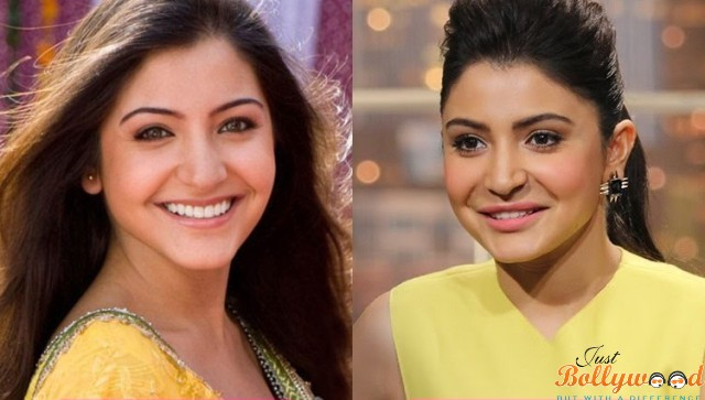 Photo of Top 5 Bollywood Actress Who Underwent Plastic Surgery