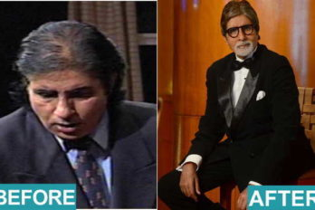 5 Bollywood Actors Who Went For Hair Transplant Surgery