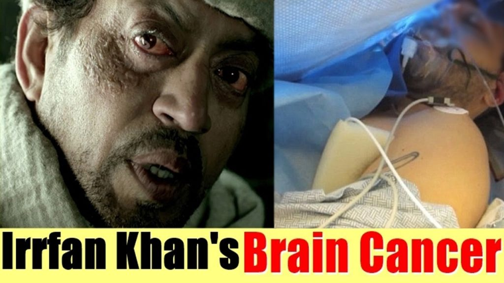 Irrfan Khan is suffering from Brain Cancer